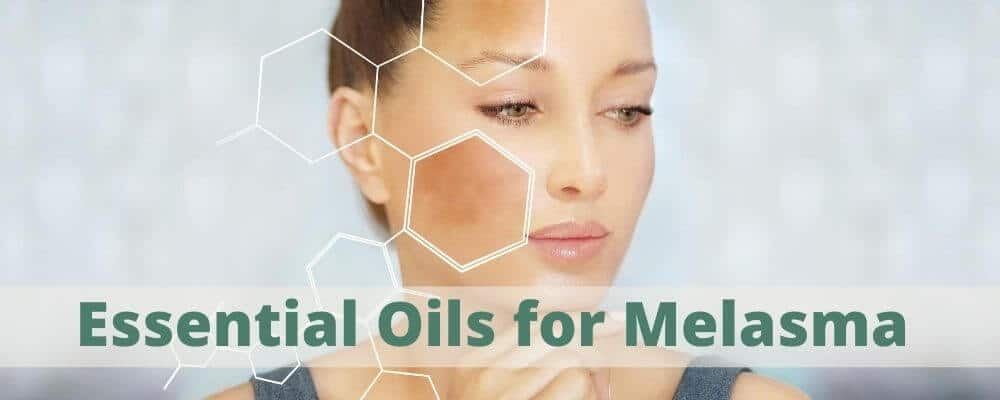 Essential-Oils-for-Melasma